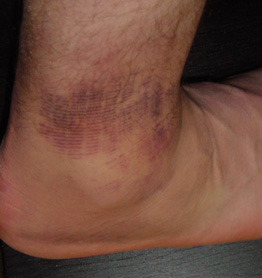 My sprained ankle.